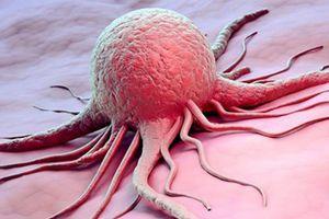 Siêu chip với chấm lượng tử mở ra hướng mới trong điều trị ung thư
