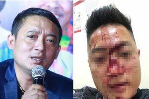 Bị tố cho vệ sĩ đánh fan 'bể mặt', danh hài Chiến Thắng lên tiếng giải thích