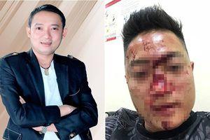 Chuyện showbiz: Chiến Thắng bị tố cho vệ sĩ đánh vỡ đầu khán giả
