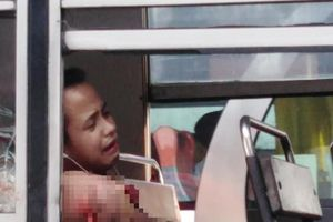 Thanh niên đau đớn mất cánh tay chỉ vì thói quen nhiều người mắc phải khi đi xe buýt