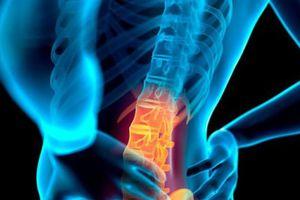 5 thói quen đơn giản ngăn ngừa đau lưng không phải ai cũng biết