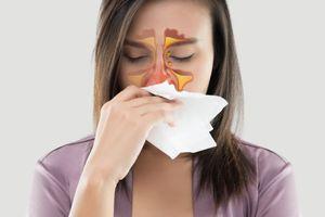 5 cách trị viêm xoang tại nhà đơn giản mà hiệu quả