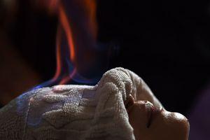Dùng lửa chữa bệnh: Giật mình thon thót, sợ cho bệnh nhân