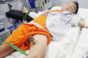 Trèo cây chơi trốn tìm, bé trai 9 tuổi ngã xuống bị cọc sắt nhọn đâm xuyên đùi
