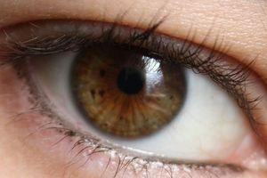 Có thể phát hiện protein phá hủy não trong mắt