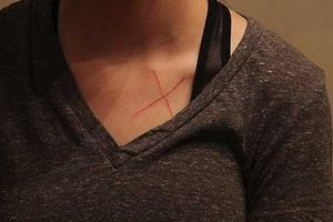 Thanh niên suýt đi tù 99 năm vì bị tố khắc chữ X lên ngực bồ cũ