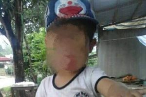 Bé trai 5 tuổi ở Yên Bái tử vong bất thường sau khi gây mê cắt amidan