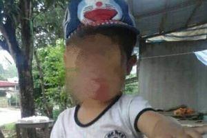 Cháu bé 5 tuổi tử vong sau nạo VA, nguyên nhân do đâu?