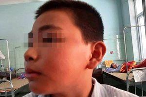 Giám đốc Sở GD-ĐT Quảng Bình đau lòng về việc nam sinh bị tát 231 cái