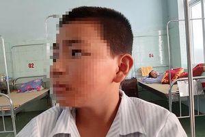 Không chỉ 1, mà tới 11 HS Trường Duy Ninh bị tát, tổng cộng 901 cái?