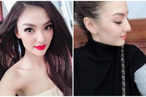 Hồng Quế thừa nhận chịu đau để 'dao kéo' mũi đẹp hơn