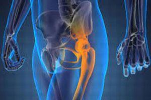 Bệnh nhân bất ngờ phát hiện ung thư xương khi đi khám