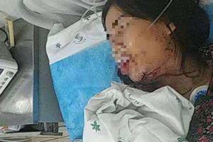 Sự thật bất ngờ về thông tin cô dâu Việt bị chồng bạo hành đến nhập viện