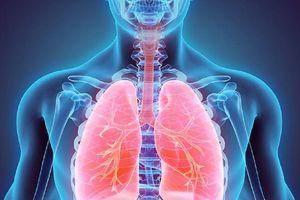Vì sao mắc viêm phổi có thể gây tử vong nếu chủ quan?