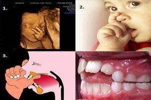 Thói quen tưởng vô hại nhưng lại khiến răng trẻ bị xô lệch, xấu xí, MẸ PHẢI CHỈNH NGAY!