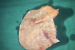 Nối vi phẫu cho một phụ nữ bị máy cuốn lột gần hết da đầu