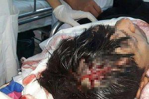 Khởi tố vụ án côn đồ hành hung bệnh nhân tại phòng cấp cứu BVĐK tỉnh Hà Nam