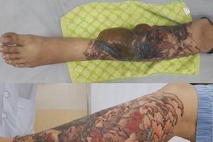 Cô gái trẻ bị bỏng nặng, hoại tử chân vì xóa hình xăm bằng laser