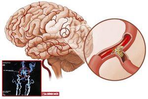Bệnh nhân 60 tuổi liệt 1/2 người được cứu sống nhờ thuốc tiêu sợi huyết