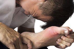 Những thực phẩm giúp ngăn ngừa bệnh gout