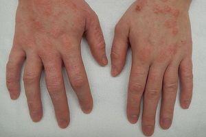 9 kiểu phát ban nhất định phải biết để còn nhận dạng những kiểu bệnh mà bản thân gặp phải