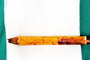 Bút chì đặt trên ghế đâm xuyên mông bé trai, ngập sâu 8cm