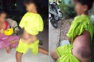 Học sinh lớp 1 bị cô giáo đánh tím bầm người, Bộ GDĐT ra văn bản khẩn yêu cầu xác minh