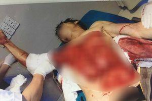 Kinh hoàng nạn nhân bị lột sạch da bụng, ngực vì cuốn vào máy bóc gỗ