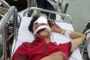 Ván gỗ bật vào mặt, một lao động Nghệ An bị thương nặng