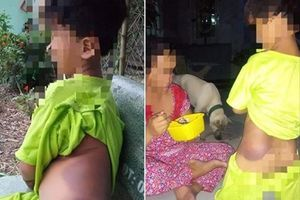 Học sinh Long An bị đánh tím bầm, Giám đốc Sở Giáo dục nhận thiếu sót