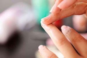 Ứng dụng điện thoại chẩn đoán được bệnh thiếu máu qua ảnh