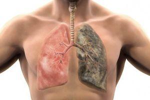 Những triệu chứng cảnh báo bệnh nghiêm trọng về phổi