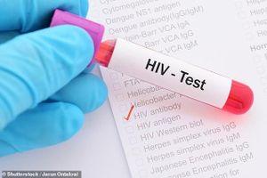 Phát hiện gien Tat, thủ phạm giúp vi rút HIV lẩn trốn
