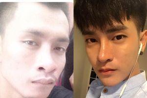 Chàng trai Thái Lan trải qua 30 lần thẩm mỹ để giống người Hàn Quốc