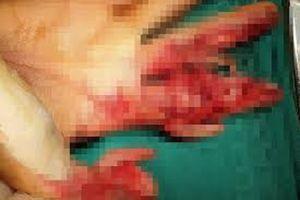 Người phụ nữ 48 tuổi bị nghiền nát bàn tay vì máy xay thịt