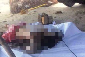 Vụ 2 cục đá buộc vào chân thi thể trên biển Mũi Né: Bất ngờ về bệnh án của nạn nhân