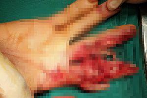 Người phụ nữ 48 tuổi bị máy xay thịt nghiền nát bàn tay