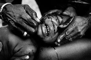 Rùng mình hủ tục rạch mặt trẻ em đánh dấu tuổi trưởng thành ở Tây Phi