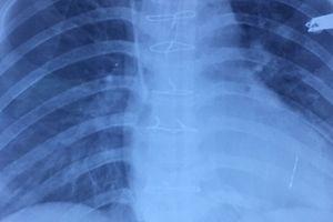 Bệnh viện Xuyên Á cứu sống nữ bệnh nhân bị cướp đâm thấu tim