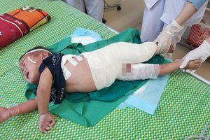 Ngã vào nồi măng luộc, cậu bé 2 tuổi bị bỏng hết bộ phận sinh dục