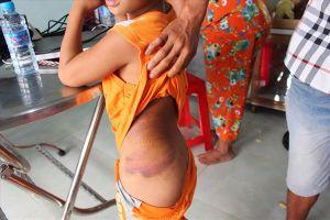 Kỷ luật cảnh cáo cô giáo đánh học sinh thâm tím cơ thể