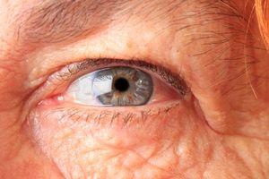 Thử nghiệm mới giúp chẩn đoán sớm bệnh thoái hóa điểm vàng