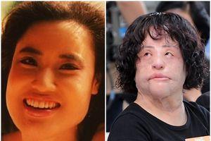 Ca sĩ 'thảm họa dao kéo' Hàn Quốc qua đời ở tuổi 57