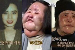 Mỹ nữ Hàn Quốc nghiện thẩm mỹ chết trong cô độc ở tuổi 57