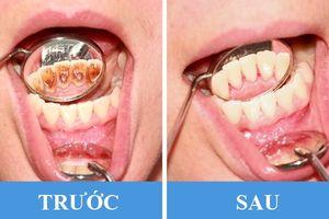 8 thói quen phổ biến gây hại răng miệng