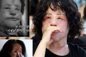 Thảm họa dao kéo sốc nhất lịch sử Hàn Quốc qua đời ở tuổi 57