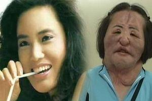 'Ca sĩ nghiện dao kéo' xứ Hàn chết trong cô độc ở tuổi 57