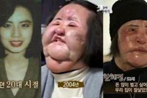 'Thảm họa thẩm mỹ xứ Hàn' Han Mi Ok bất ngờ qua đời