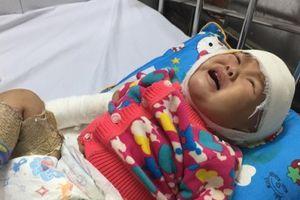 Cao Bằng: Bé gái không may ngã vào bếp lửa bị bỏng nặng cầu cứu