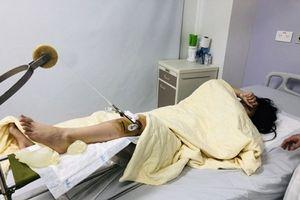 Đã bắt được tài xế Range Rover đâm gãy chân nữ sinh ở Hà Nội